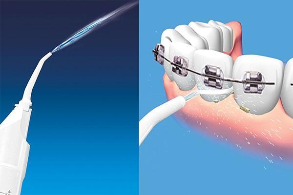 Conseils d'utilisation du jet dentaire