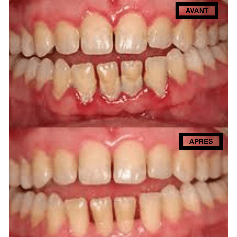gingivite-parodontite-meilleur-traitement-jet-dentaire-hydropulseur