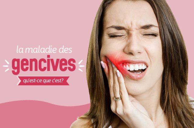 la maladie des gencives ou parodontale: qu'est-ce que c'est?