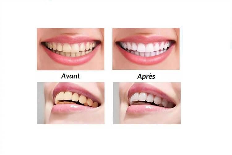 kit-blanchiment-dentaire-bbryance-avis-kit-blanchiment-dentaire-professionnel-kit-blanchiment-dentaire-gratuit-kit-blanchiment-dentaire-bbryance