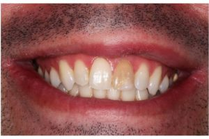 dent-devitalisee-douleur-dent-devitalisee-cassee-dent-morte-symptome-dent-necrosee-odeur-necrose-dentaire-cancer