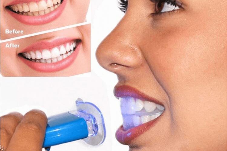 kit-blanchiment-dentaire-professionnel-kit-blanchiment-dentaire-avis-kit-blanchiment-dentaire-bbryance-kit-blanchiment-dentaire-white-care-kit-blanchiment-dentaire-amazon