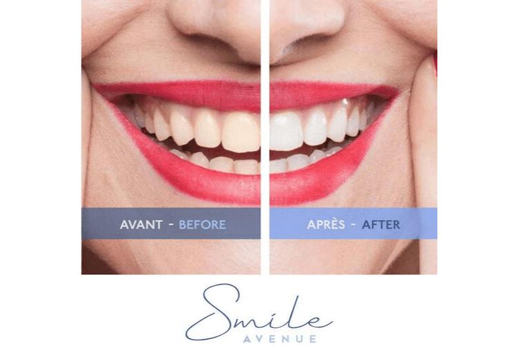 kit-blanchiment-dentaire-bbryance-avis-kit-blanchiment-dentaire-professionnel-kit-blanchiment-dentaire-avis-kit-blanchiment-dentaire-bbryance-kit-blanchiment-dentaire-white-care-kit-blanchiment-dentaire-amazon-kit-smile-avenue